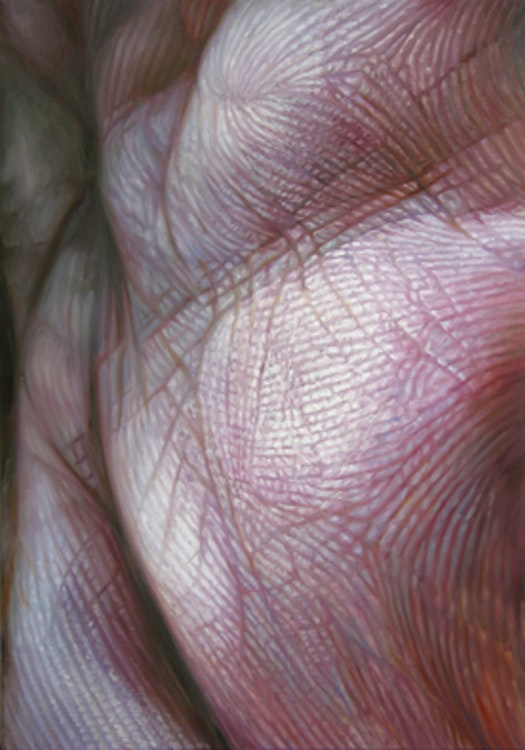 Skin 2